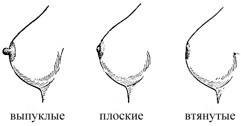 формы сосков уженщин фото