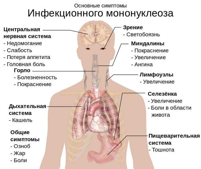 Области организма, которые поражает мононуклеоз