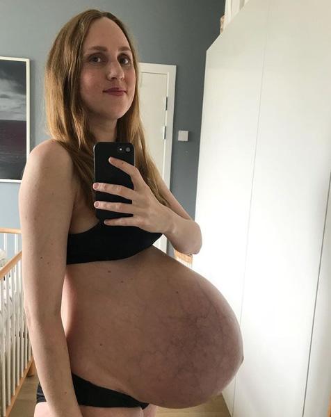 Беременность тройней 35 недель