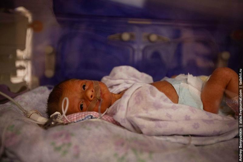 Недоношенный ребенок с малым весом